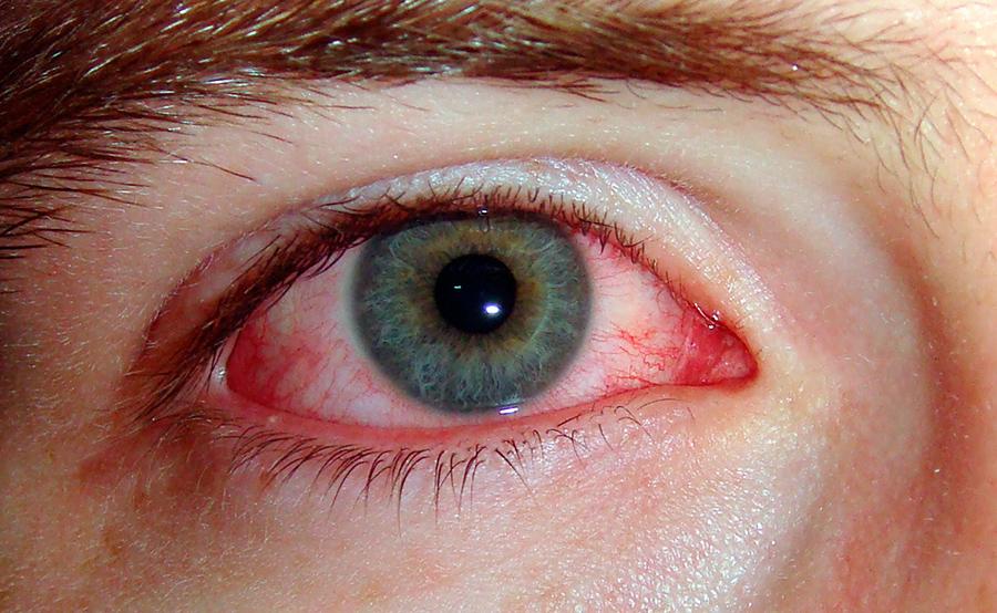 ojo con conjuntivitis por alergia primaveral